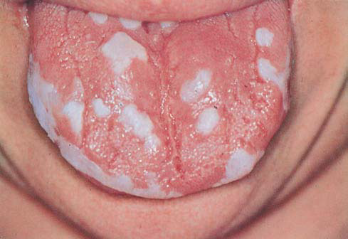 mucocutaneous candidiasis in adults
