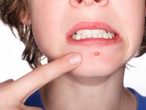 probiotics_acne